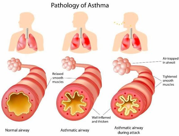 Vitamin D3 Therapy Cures Asthma