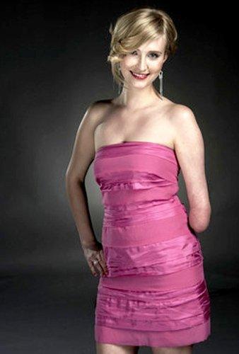 beautiful disabled model Kelly Knox