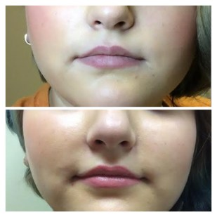 Permanent Lips, 10 Days Healed, Before and After