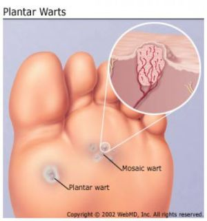 wart diagram | from NAILS to NONSENSE