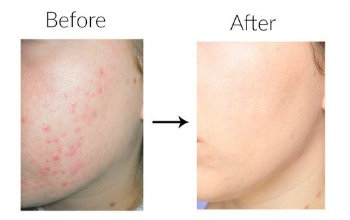 Get Rid Of Acne and dark marks