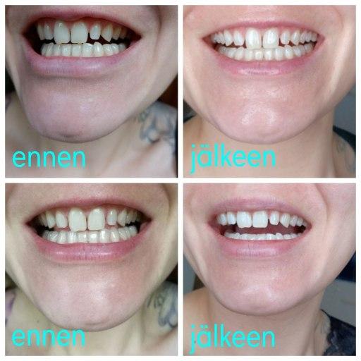 Hampaiden valkaisu ennen ja jälkeen kuvat
