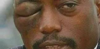 Rais wa Kongo Joseph Kabila Aumwa na Nyuki Ikulu