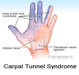 carpal-tunnel-premiere-orthopedics