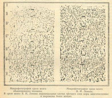 Человек и Природа, 1929-02, П???????????? ?  Проблема анатомийеской основы одаренности и мозг В. И p. 16 cropped.jpg