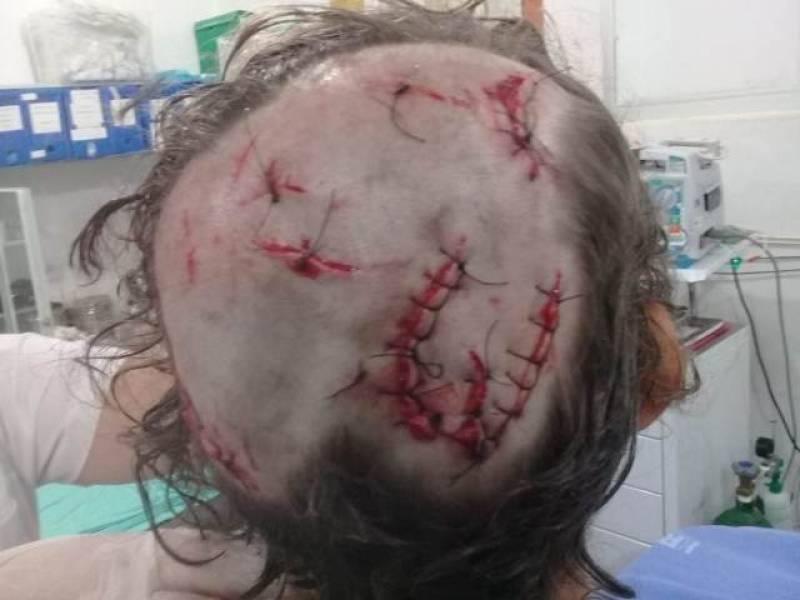 Menina de 8 anos é atacada por pit bull em Rondônia; homem que passava pelo local conseguiu salvá-la