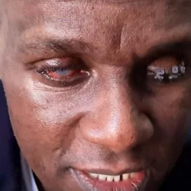 Médico atingido por ácido sulfúrico em Rondônia se revolta com resultado do julgamento de seu agressor – VÍDEO