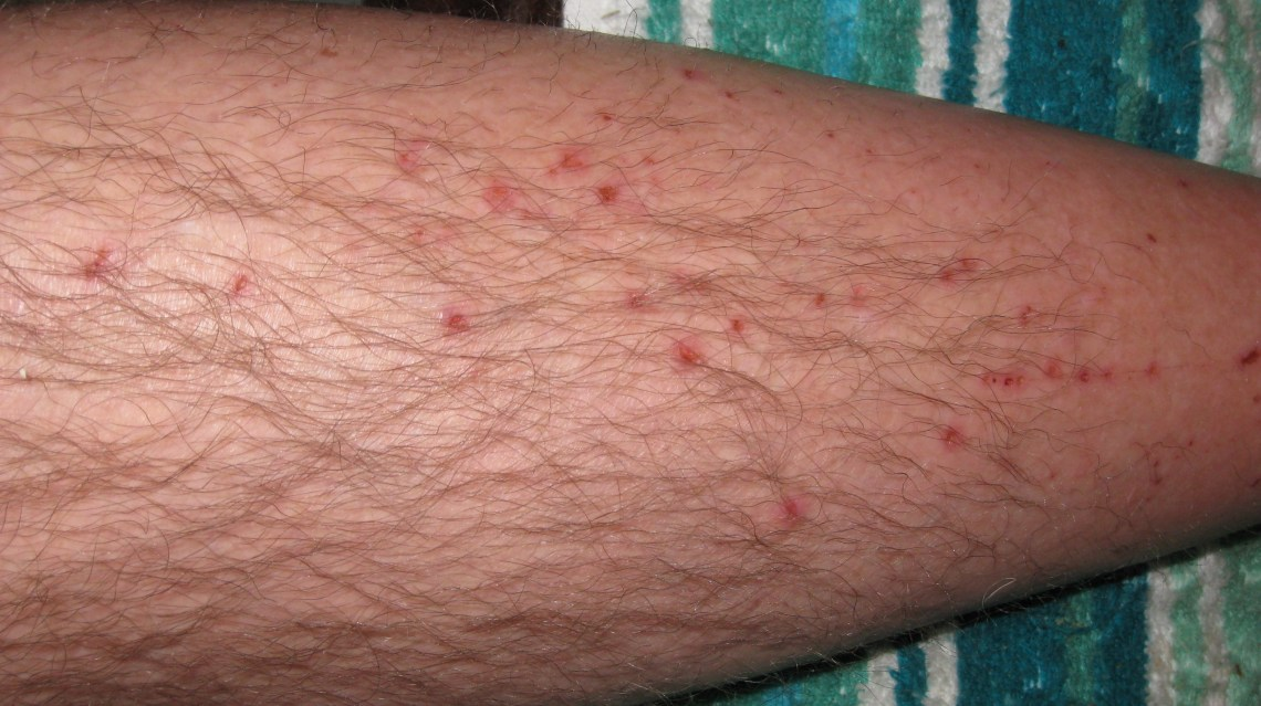 Lower Leg Skin Rash Pictures to Pin on Pinterest - PinsDaddy