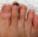 ランニング・トレランでよくある黒爪(爪下血腫)の原因と予防する対処法