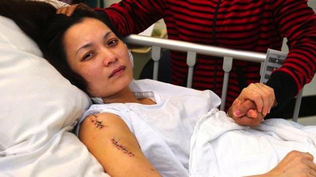 นาง Sheila Tran กับบาดแผลถูกยิงหลังการผ่าตัดใหม่ ๆ : ภาพจากทีวี 7 News