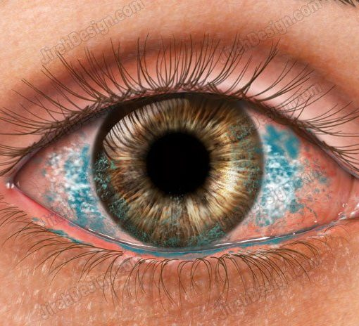 Dry Eye Corneal Staining