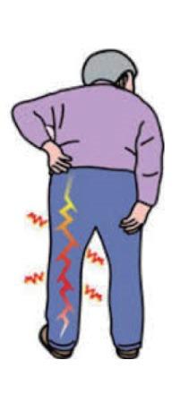 「ジャパニーズ鍼灸クリニック」の健康コラム:坐骨神経痛と鍼灸治療