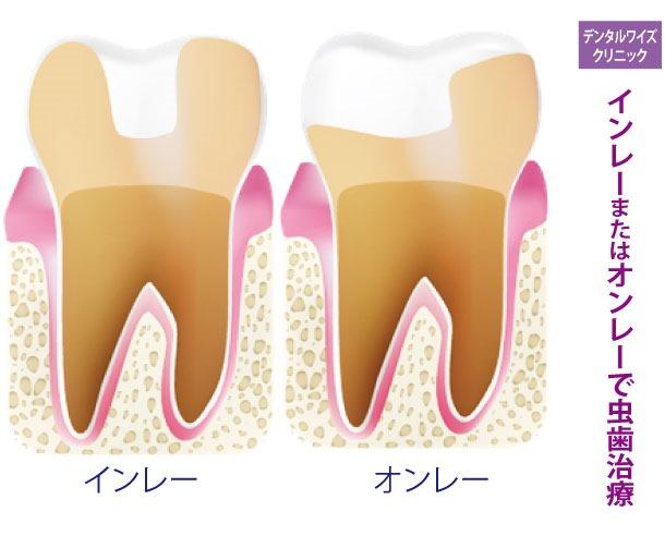 インレーまたはオンレーで虫歯治療