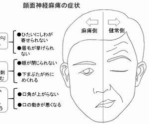 神経 原因 顔面 麻痺