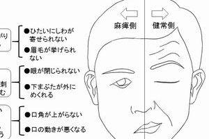 山田ローラ ベル麻痺 原因 ウィルス ストレス 腫瘍 画面神経 初期症状 治療方法 後遺症 味覚障害 ステロイド 双子 妊娠 出産