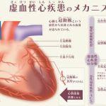 虚血性心不全の原因や予防は?武藤まき子の症状を調べてみた!