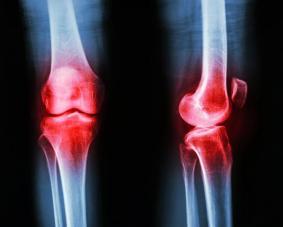 osteoarthritis-joelhos