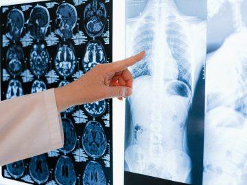 life changing injury compensation