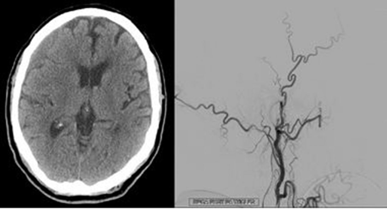 E 100 Middle Meningeal Artery Embolization For The Treatment Of Chronic Subdural Hematomas