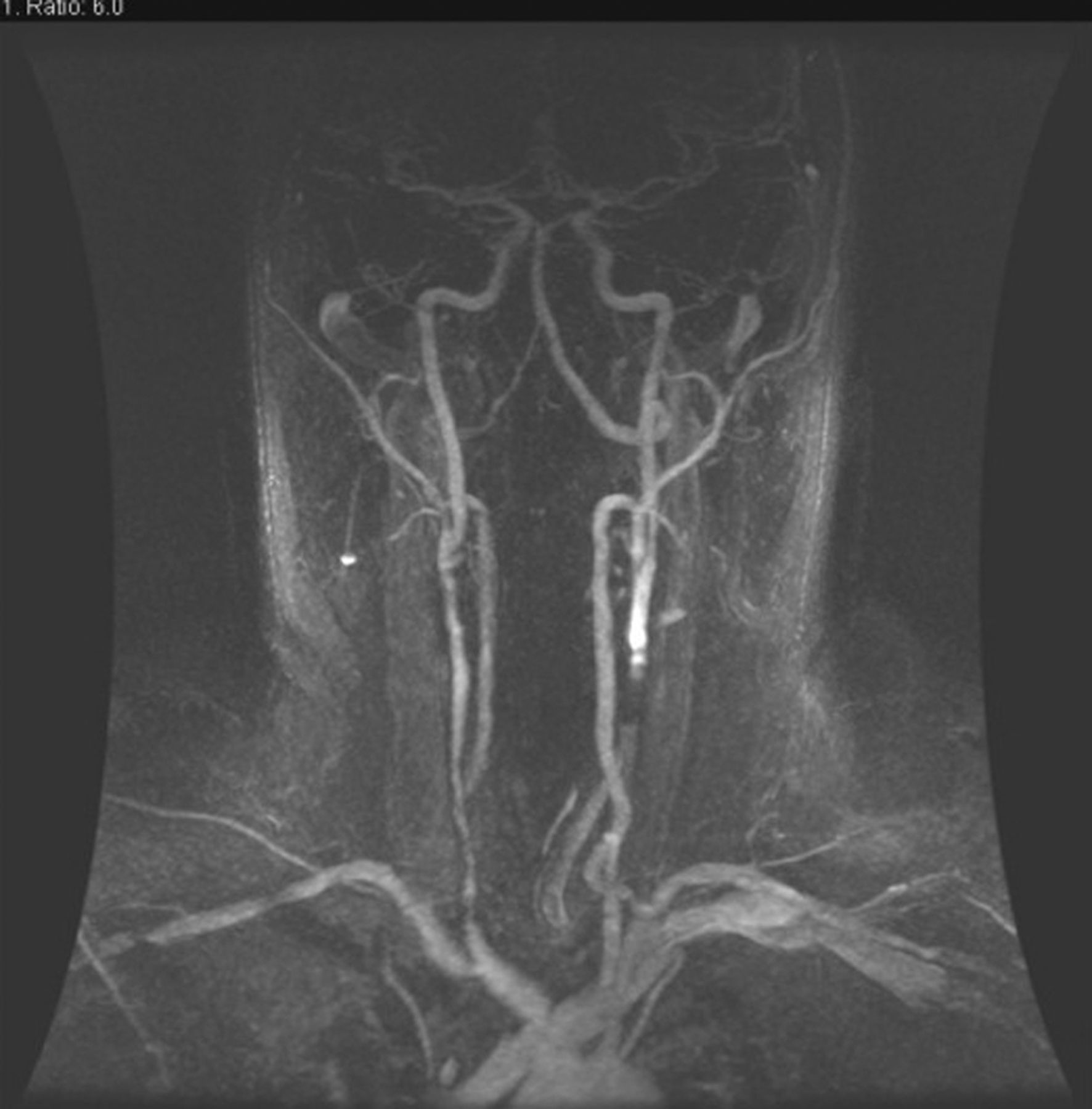 Imaging Challenges Of Carotid Artery In Stent Restenosis