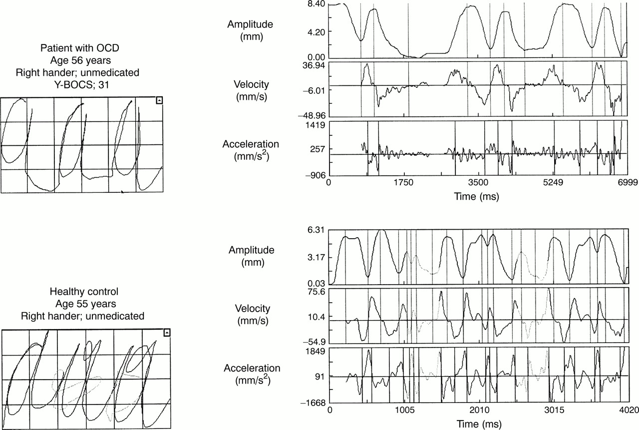 Kinematicysis Of Handwriting Movements In Patients With Obsessive Compulsive Disorder