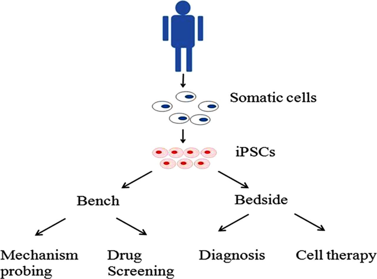 Induced Pluripotent Stem Cells In Parkinson S Disease Scientific And Clinical Challenges