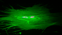 Cardiomyocyte staining