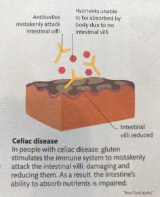 Celiac Disease Explanation