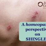A Better Medicine for Shingles