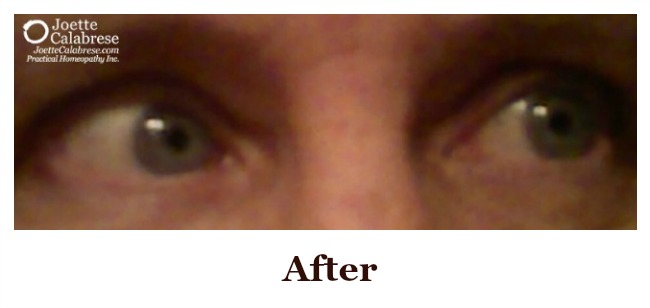 Chronic Dry Eyes AFTER