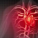 Hjärtinfarkt vid 43