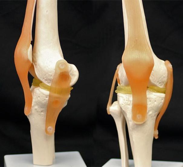 3D Printed Knee Implants