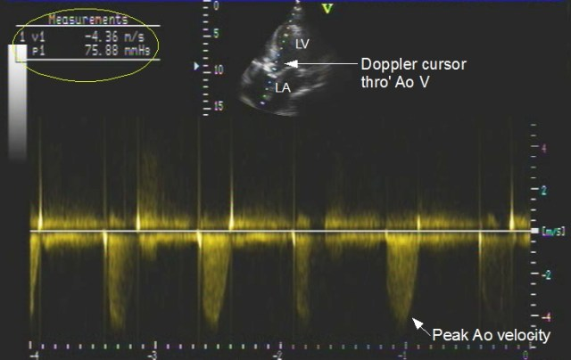 Continuous wave (CW) Doppler imaging in aortic stenosis