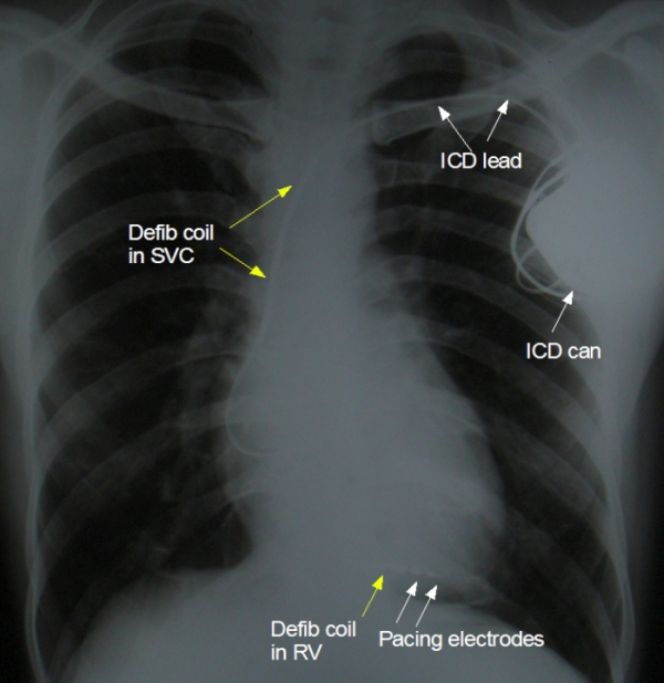 X-ray of Implanted Cardioverter Defibrillator (ICD)