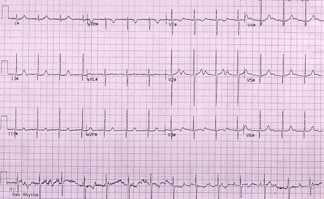 Congenital complete heart block - peak exercise