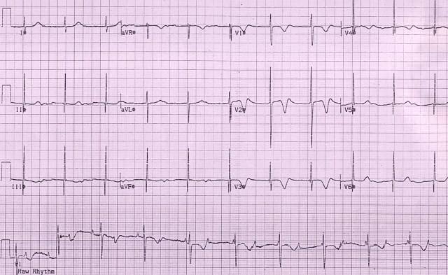 Congenital complete heart block - Stage 1 of exercise
