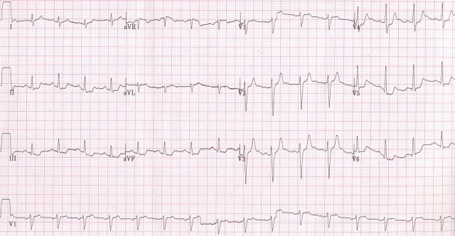 Treadmill test early recovery ECG