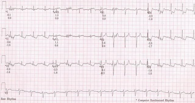Treadmill test recovery phase ECG at 3 min