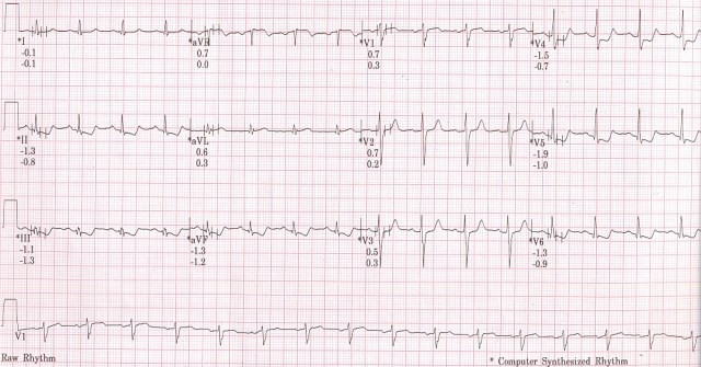 TMT recovery phase ECG at 6 minutes