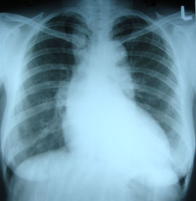 Dilated aorta with unfolding of arch on X-ray chest PA view