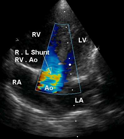 Apical five chamber view in Tetralogy of Fallot in systole with right to left shunt