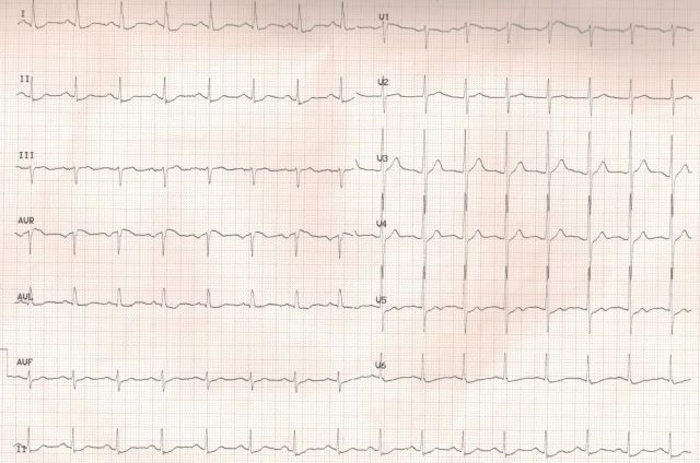 Previous ECG of LMCA disease