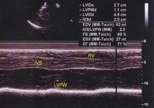 M-Mode echocardiogram in hypertrophic cardiomyopathy