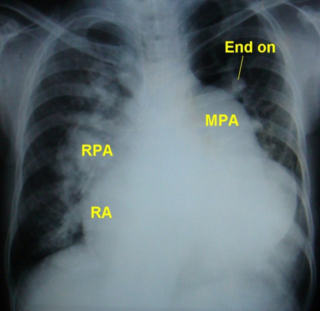 X-ray chest in atrial septal defect with pulmonary hypertension (PA view)