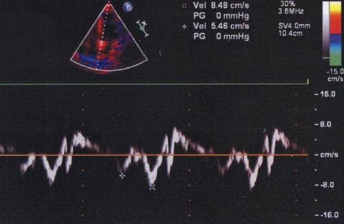 Tissue Doppler Imaging at the level of the mitralannulus, septal side
