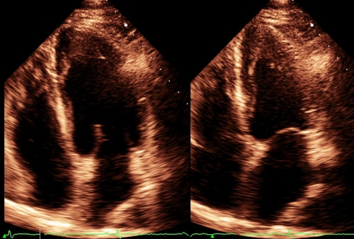 Systolic and diastolic frames from apical 4C view