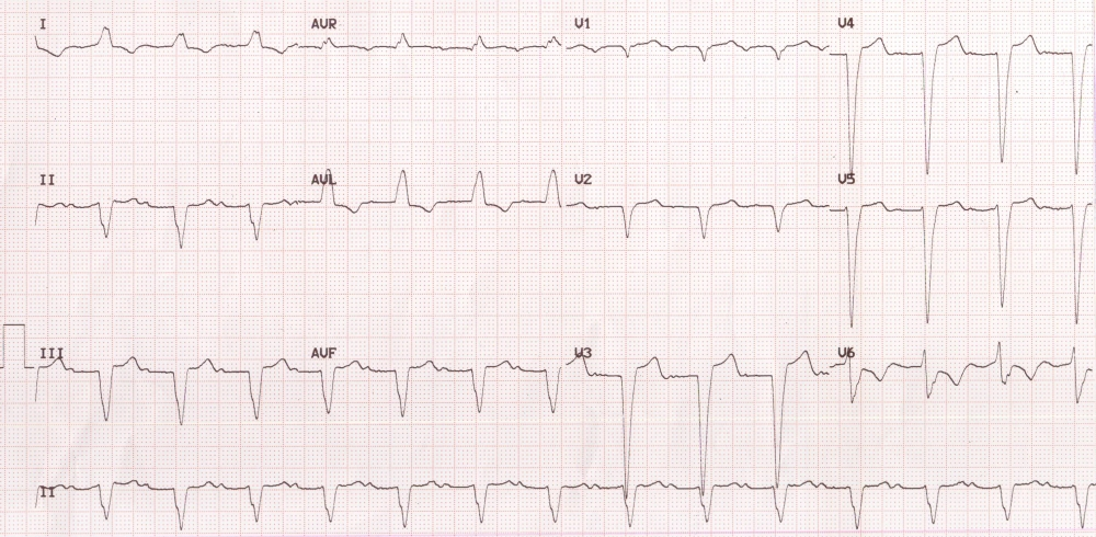 LBBB with First Degree AV Block