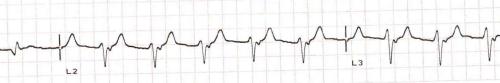 AIVR with regular retrograde P waves