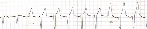 AIVR with evident wide QRS