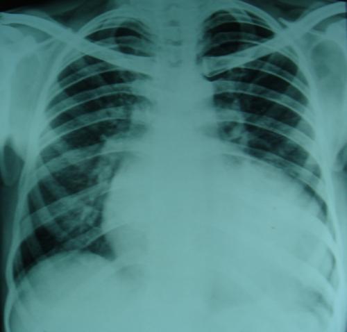 Cardiomegaly on CXR in dilated cardiomyopathy